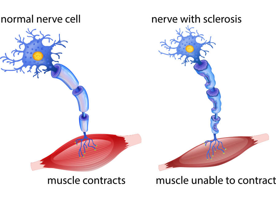 als stem cell treatment, ALS treatment, Amyotrophic Lateral Sclerosis treatment