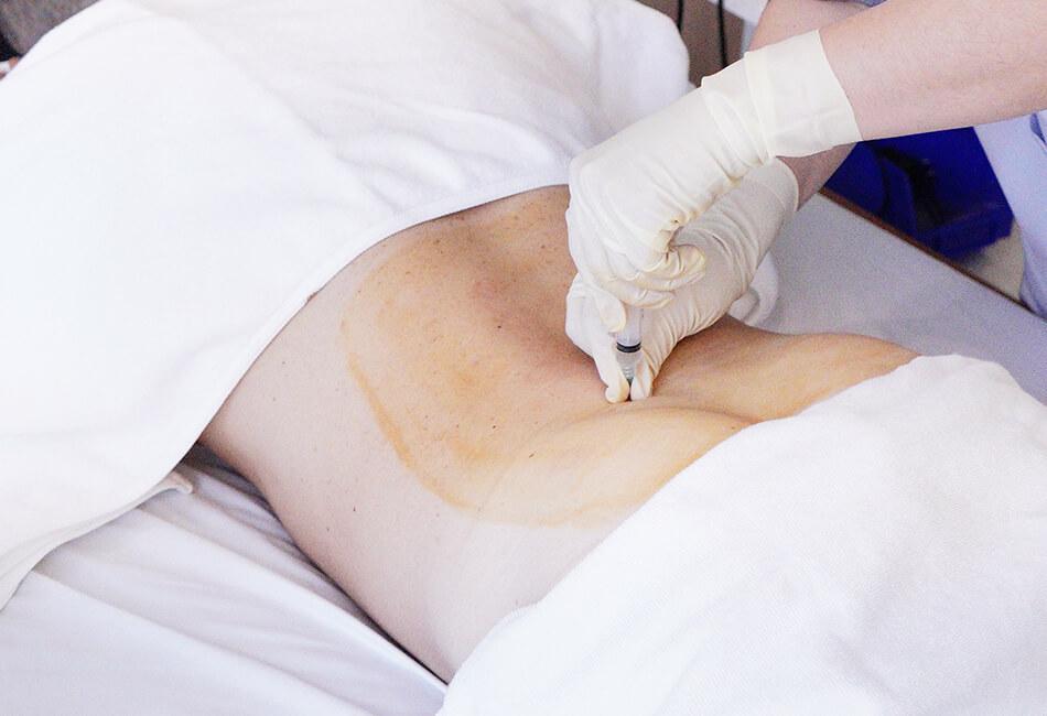 degenerative-disc-stem-cell-treatment-2 (1)